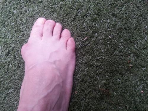 voet 2